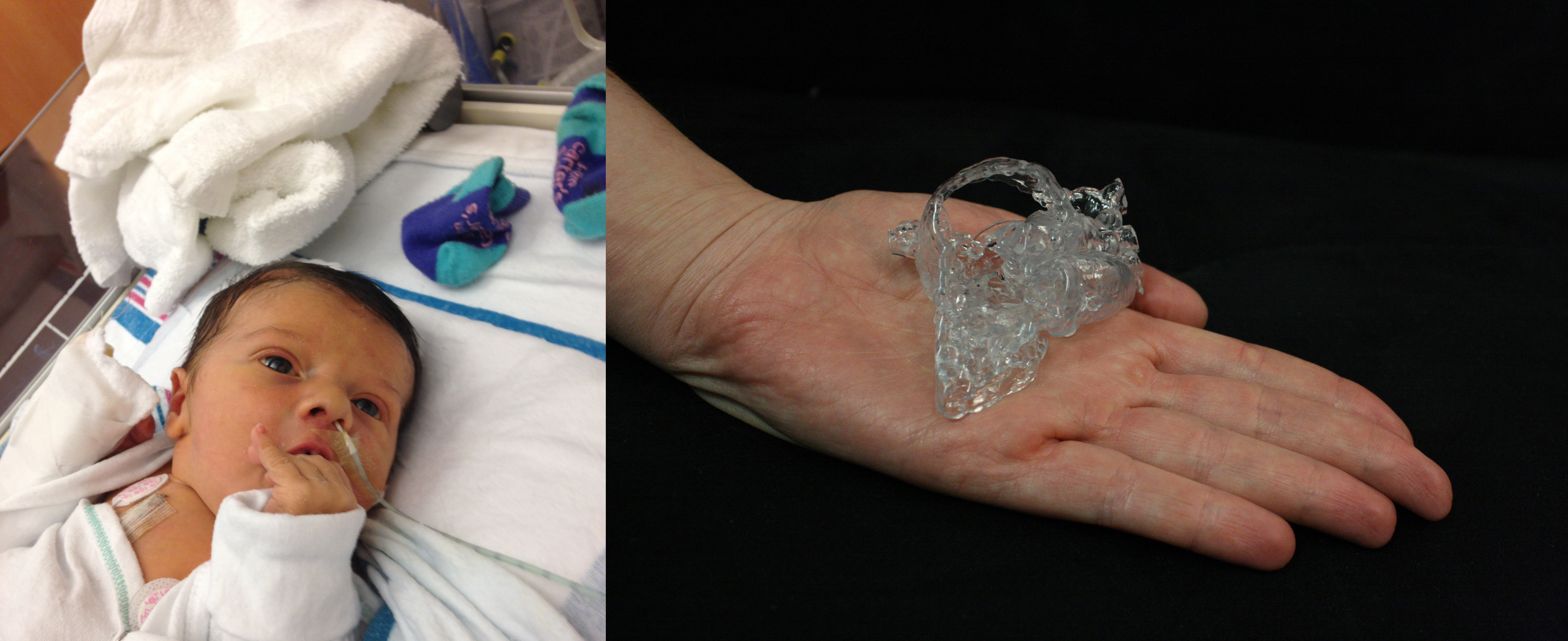 Materialise's 3D printed HeartPrint services